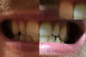Zahnaufhellung Aktivkohle vorher-nacher-Bild
