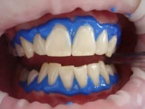 Bleaching beim Zahnarzt