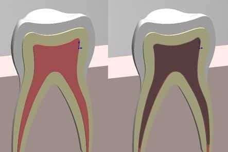 Intrinsische Zahnverfärbung